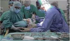 Bác sĩ của Vatican mổ thành công tách cặp song sinh dính nhau ở bụng